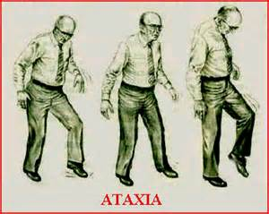 ataxia de friedreich image galleries imagekb com ataxia light sun Friedreich's Ataxia