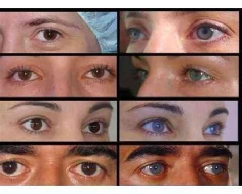 how to change your eye color without contacts or surgery change your eye color permanently hubpages