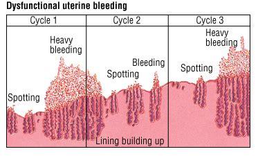 endometrial shedding without blood dysfunctional uterine bleeding harvard health