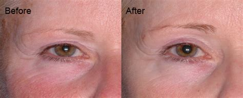 led light therapy before and after before and after results aduro australia