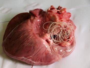 Paraziți în intestinul uman — tipuri de protozoare ...