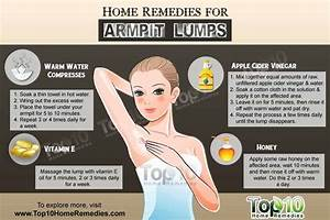 Home Remedies for Armpit Lumps | Swollen lymph nodes ...