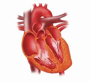 Congestive Heart Failure Diagram, Congestive, Free Engine ...
