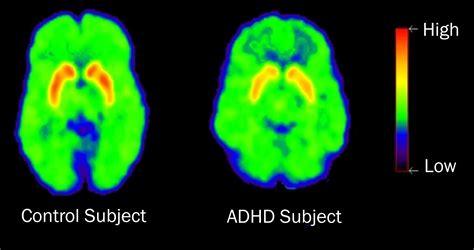 The Symptoms Of Adhd  Adhd Add