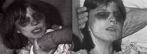 Anneliese Michel: The Woman Who Inspired 'The Exorcism of ...