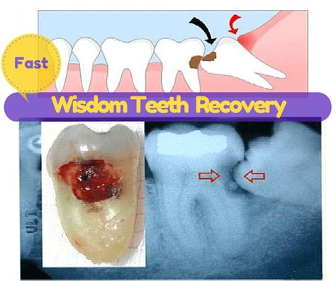 They can also talk to you about the type of anesthesia that will be used and how you'll feel after the surgery. Wisdom Teeth Recovery Tip, Foods, 1st, 2nd 3rd Day ...
