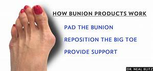 The Best Products To Avoid Bunion Surgery
