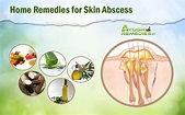 7 Best Home Remedies for Skin Abscess - All Natural Treatments