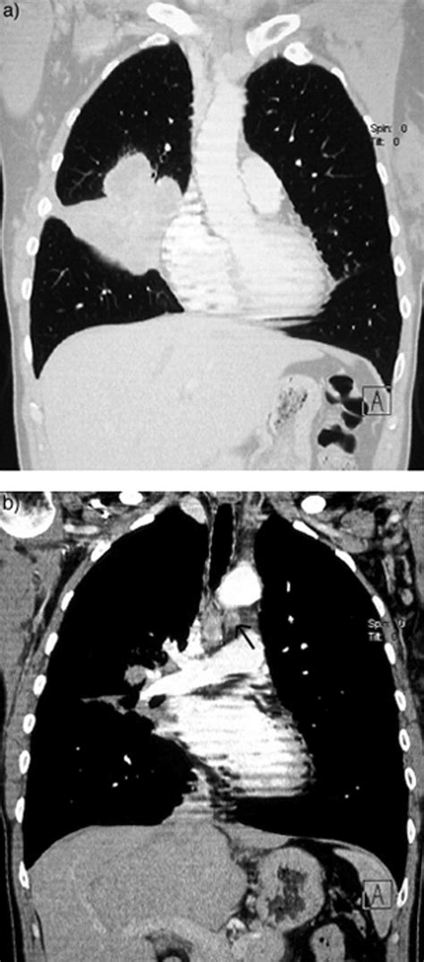 New imaging techniques in the treatment guidelines for