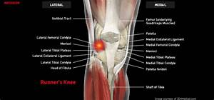 Runner U2019s Knee  Iliotibial Band Friction Syndrome