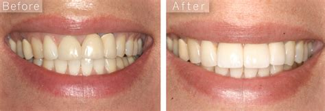 After removing the cavity or the old filling from your tooth, your dentist uses composite to fill it, gives it a beautiful shape, and then exposes it to blue light to make the filling hard. Implant with Bone Grafting   Tooth replacement, Bone grafting, Teeth