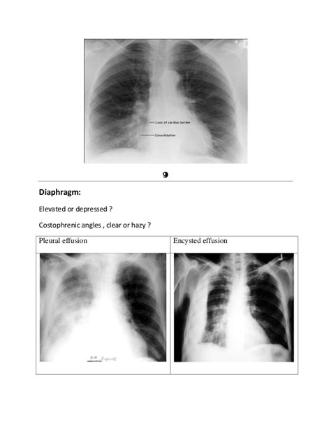 ray chest seconds hazy diaphragm elevated costophrenic