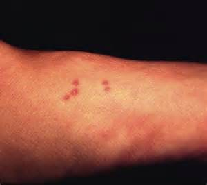 Insect Bites and Stings First Aid