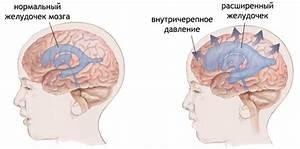 Повышенное внутричерепное давление симптомы причины и лечение