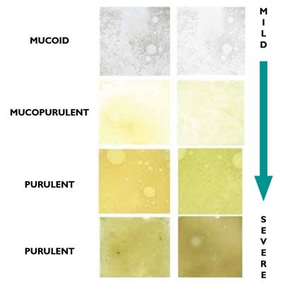 Lung Mucus Color Chart  Home Remedies To Get Rid Of. Algorithm Signs Of Stroke. Coma Signs. Compressed Air Signs. Nosocomial Pneumonia Signs. Holiday Closed Signs. Julie Hanks Signs. Xing Signs. Movie Signs