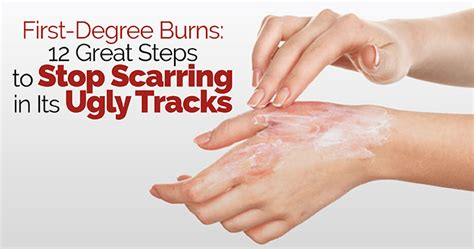 12 Great Steps To Stop Scarring In Its