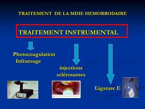 bain de si鑒e pour fissure anale ppt pathologie anale au cours de la grossesse powerpoint presentation id 960758