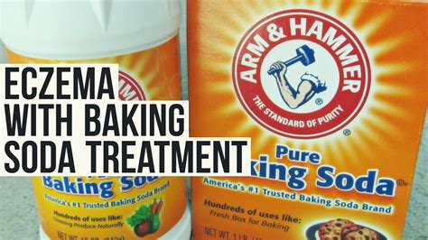 what is baking soda how to soothe eczema with baking soda