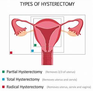Lena Dunham U0026 39 S Hysterectomy May Be Dangerous