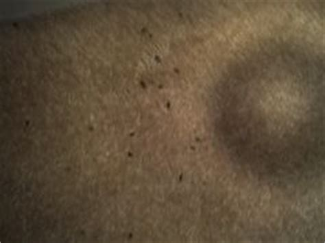 bed bug frass trail rove pest