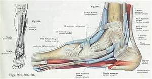 10 Best Images About Ankle And Foot Issues   Ankle Fusion