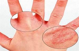 Папилломы на теле лечение гомеопатией
