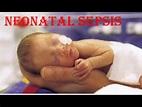 Neonatal Sepsis - YouTube