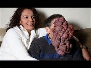 Person with Tumor