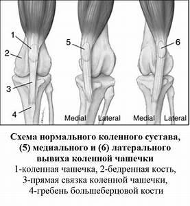 Проснулся от боли в коленном суставе