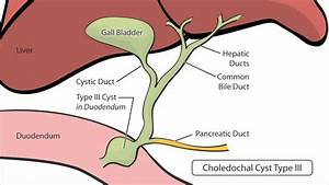 What Is A Choledochal Cyst
