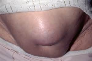 Paraumbilical Hernia in Adults
