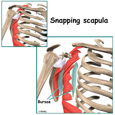 my chart snapping scapula syndrome houston methodist