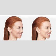 Botox Before And After  Westport, Ct