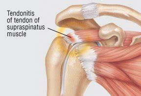 Forearm tendonitis is a condition in which the tendons in the forearm become inflamed and painful. Tendonitis Guide: Causes, Symptoms and Treatment Options