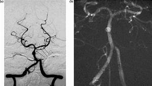 Patient 2  Angiogram Of Basilar Artery And Branches