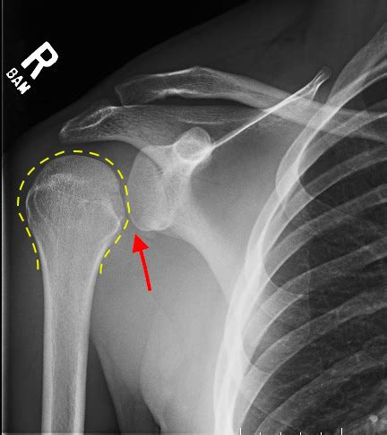 Posterior Shoulder Dislocation, AP XR, Annotated. JETem ...