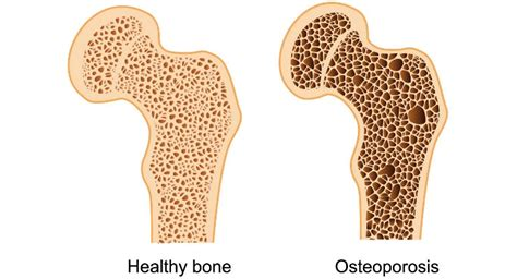 Awareness, Adherence Key To Improved Osteoporosis Care ...