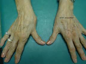 Thumb Basal Joint Arthritis Surgery