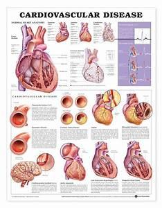 Anatomy Chart Cardiovascular Disease