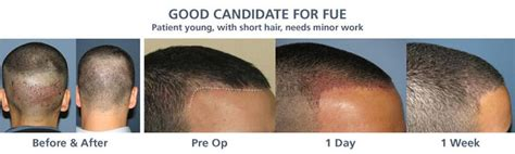 Hair Implants Canton Oh 44735 16 Best Disturbed With Hair Loss Problem Images On