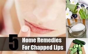 Top 5 Home Remedies For Chapped Lips Natural Treatments