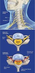 Spinal Stenosis  Cervical