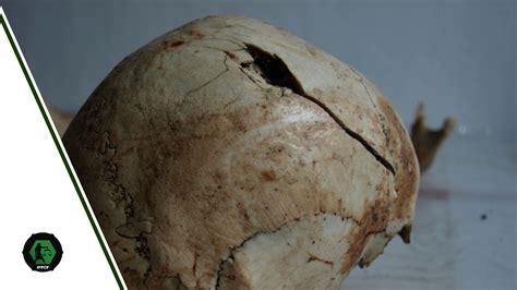 Traumas óseos | Introducción a los traumas antemortem ...