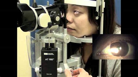 slit l eye exam part 3 using a slit l youtube