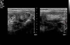 Jejunal Intussusception-ultrasound