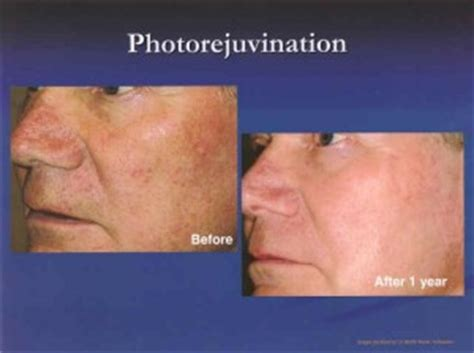 blue light treatment aftercare photodynamic therapy pdt the skin center board