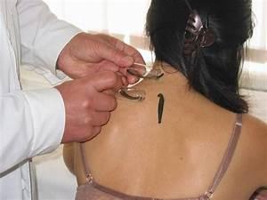Тибетский способ лечения остеохондроза