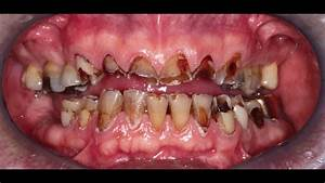 Full mouth restoration with full porcelain crowns, veneers ...