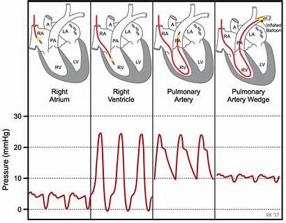 Pulmonary Pressure Wedge Capillary Heart Swan Cath