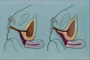 Urogenital sinus anatomy: vagina and urethra join and e ...